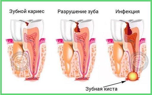 Способы лечения кисты зуба в клинике «Люми-Дент»