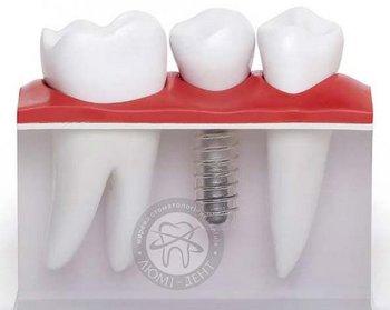 Имплантация зубов - преимущества и выбор клиники
