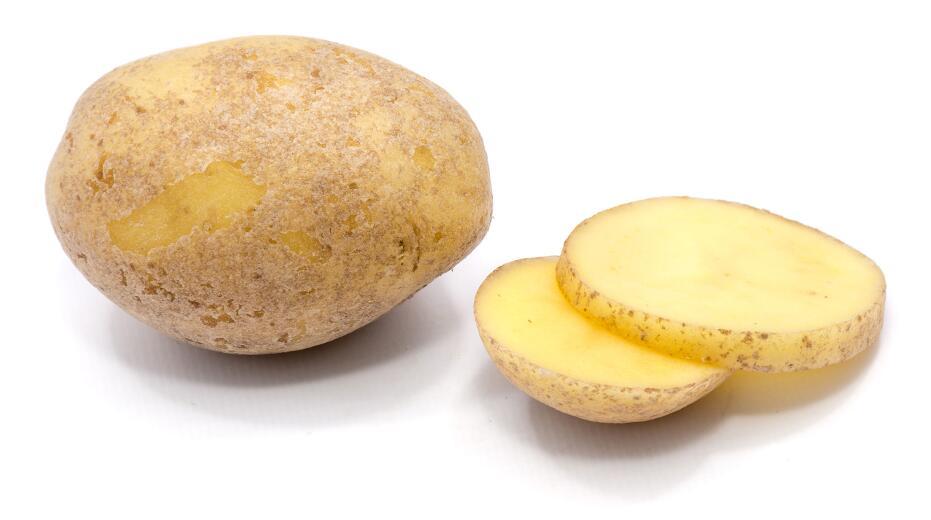 Картофель, бананы, апельсины: какие еще продукты нельзя употреблять при проблемах с почками?