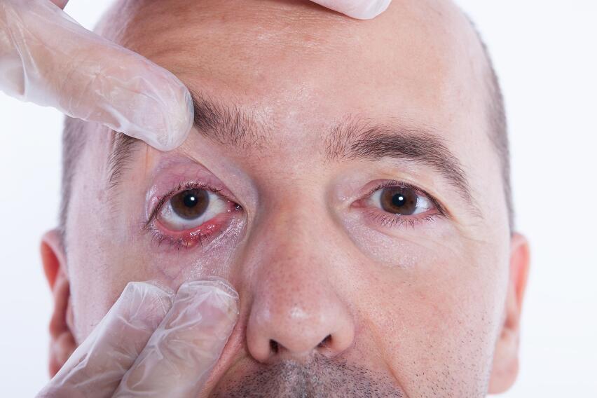 5 проблем, которые возникают у тех, кто часто трет глаза