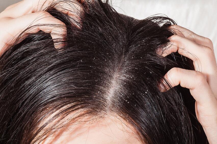5 способов справиться с повышенным потоотделением кожи головы