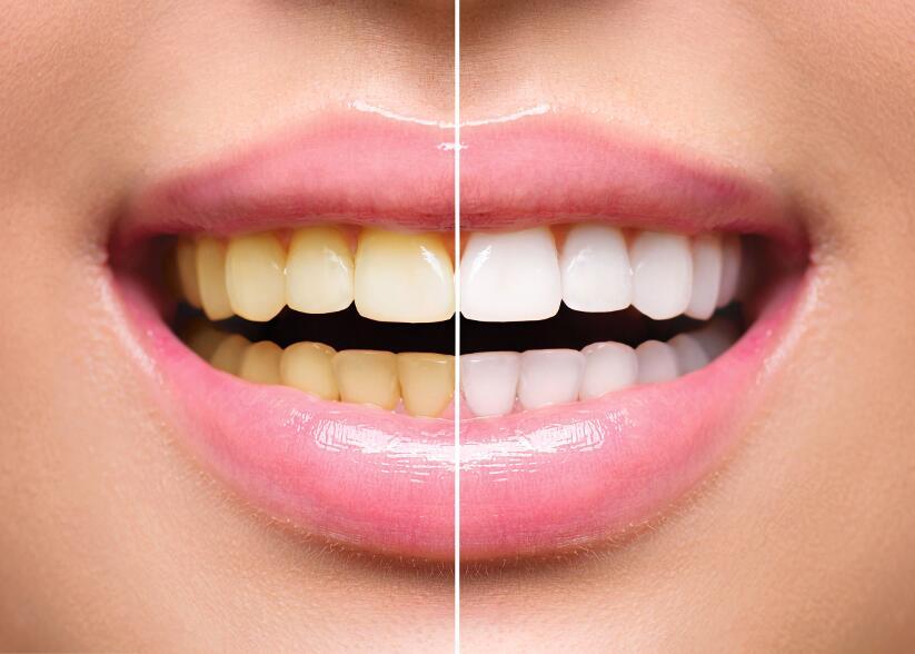 Самые безопасные способы отбеливания зубов в домашних условиях